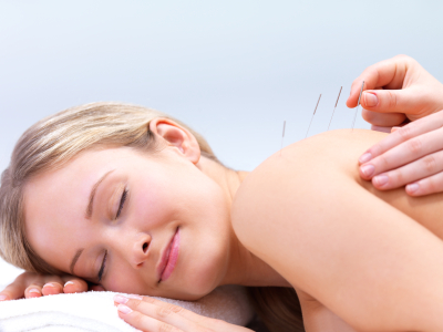acupuncture-for-beginners